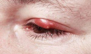 Descrierea simptomelor inflamației ochilor