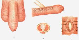 Extensia penisului penisului