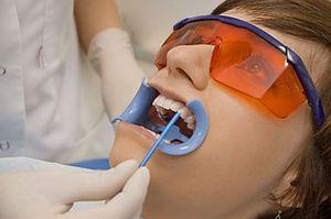 Îmbinarea dinților