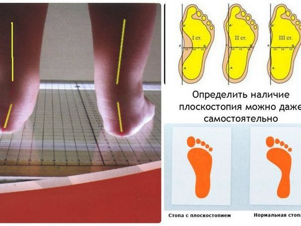 Determinați suprafața plană transversală