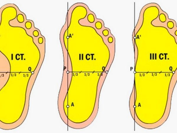 Grade picioarelor plate longitudinale