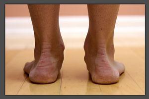 Gradul de picior