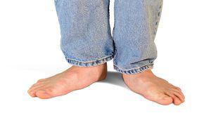 Tratamentul picioarelor plate