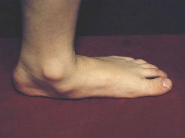 Care este piciorul plat?