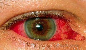 Boala oculară