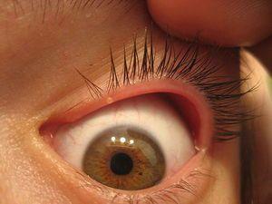 Blefarita este o boală a ochiului