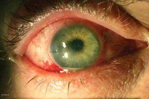 Endoftalmită - boală oculară