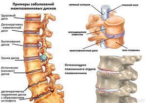 Boli ale coloanei vertebrale - cervical