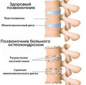 Osteochondroza - ce este această boală