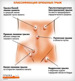 Simptomele herniei - manifestări posibile