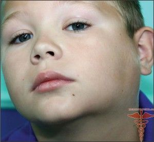 Limfadenită: tratamentul bolii