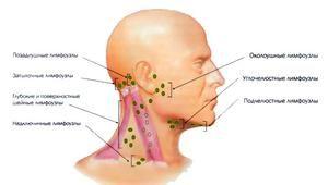 Cum și ce să tratați limfadenita
