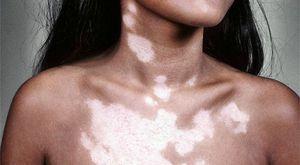 Cum de a vindeca pielea de pete albe