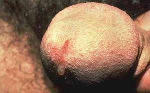 Chlamydia la bărbați - metode de tratament