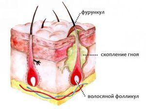 Structura unui fierbere