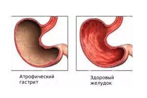 Gastrita și tratamentul acesteia