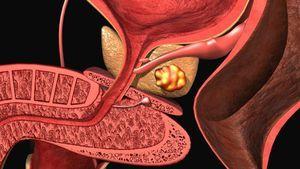 Cauzele prostatitei computerizate: principalele simptome și tratament