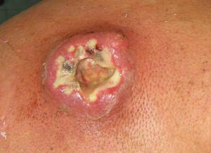 Care sunt metodele de tratament pentru carbunclele?