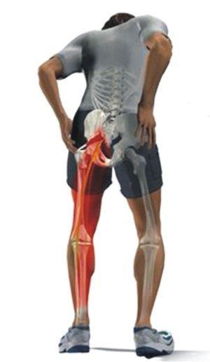 Cauze de durere la nivelul piciorului