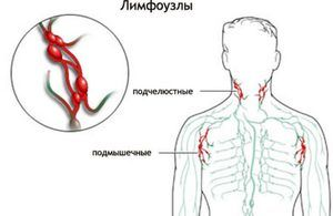 Cauzele inflamației ganglionilor limfatici
