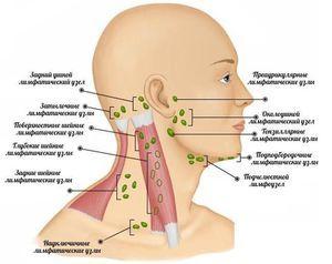 Care sunt cauzele inflamației ganglionilor limfatici