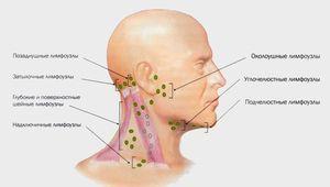 Cum să tratați ganglionii limfatici