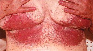 Candidoza în formă acută este adesea însoțită de mâncărime.