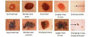 Melanomul este o boală a pielii legată de neoplasme.