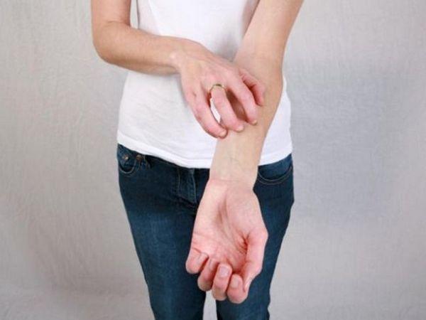 De la mâncărime alergice vă va ajuta să scăpați de comprimatele de suprastin, diazolin și alte medicamente similare.