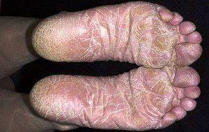 Rubrofiatia este una dintre bolile cutanate, care se caracterizează și prin prurit.