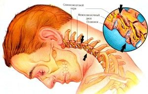 Simptomele osteocondrozei cervicale