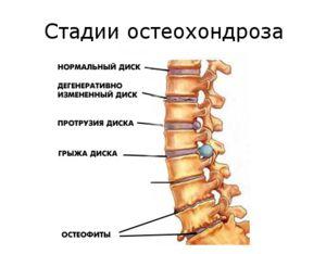 Manifestarea osteocondrozei cervicale