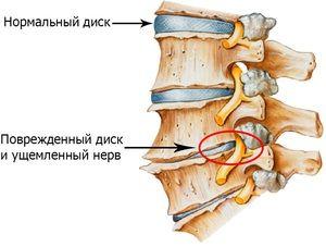 Metode populare de tratare a osteochondrozei cervicale