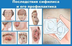 Sifilis la bărbați - caracteristici ale diagnosticului
