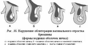 Bea sau hidrocelul
