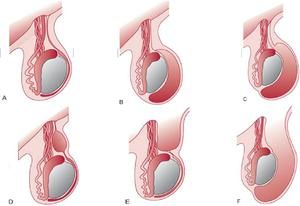 Tratamentul testiculelor