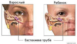 Procedura de suflare a tubului eustachian