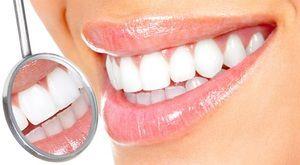 Cum se efectuează igiena orală?