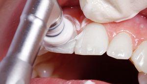 Recenzii despre curățarea profesională a cavității bucale