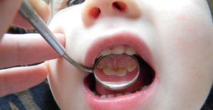Simptomele cariilor la un copil