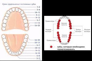 Semne de incizie a dinților