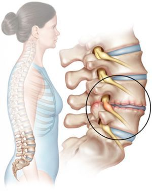 Leziunea coloanei lombare este prezentată în figură