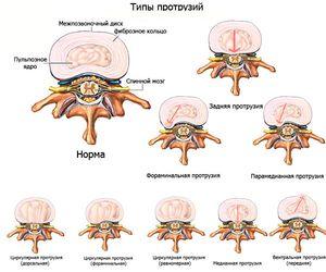 Tipuri de proeminențe - o schemă de diferite tipuri de boli