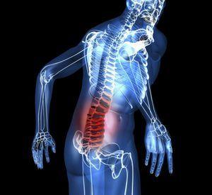 Proeminența locală a coloanei vertebrale - lombare