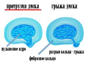 Protonia și o hernie a coloanei vertebrale - diferențe
