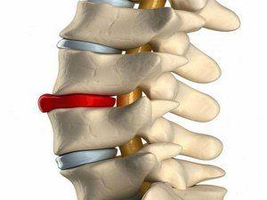 Descrierea proeminenței coloanei vertebrale lombare