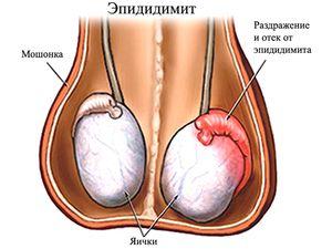 Dezvoltarea bolii cancerului testicular