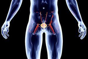 Cancerul vezicii urinare la bărbați