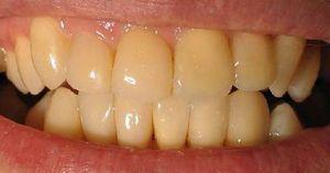 Demineralizarea dinților