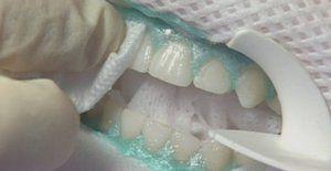 Cum se mineralizează dinții?